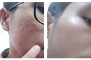 memperbaiki tekstur kulit bopeng